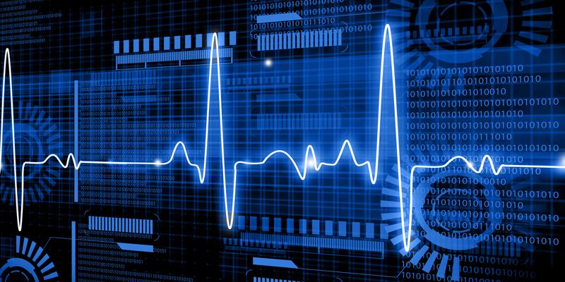ECG healthcare data
